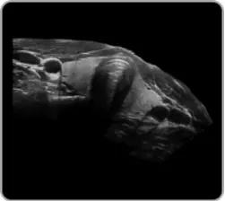 4D Ultrasound Machine