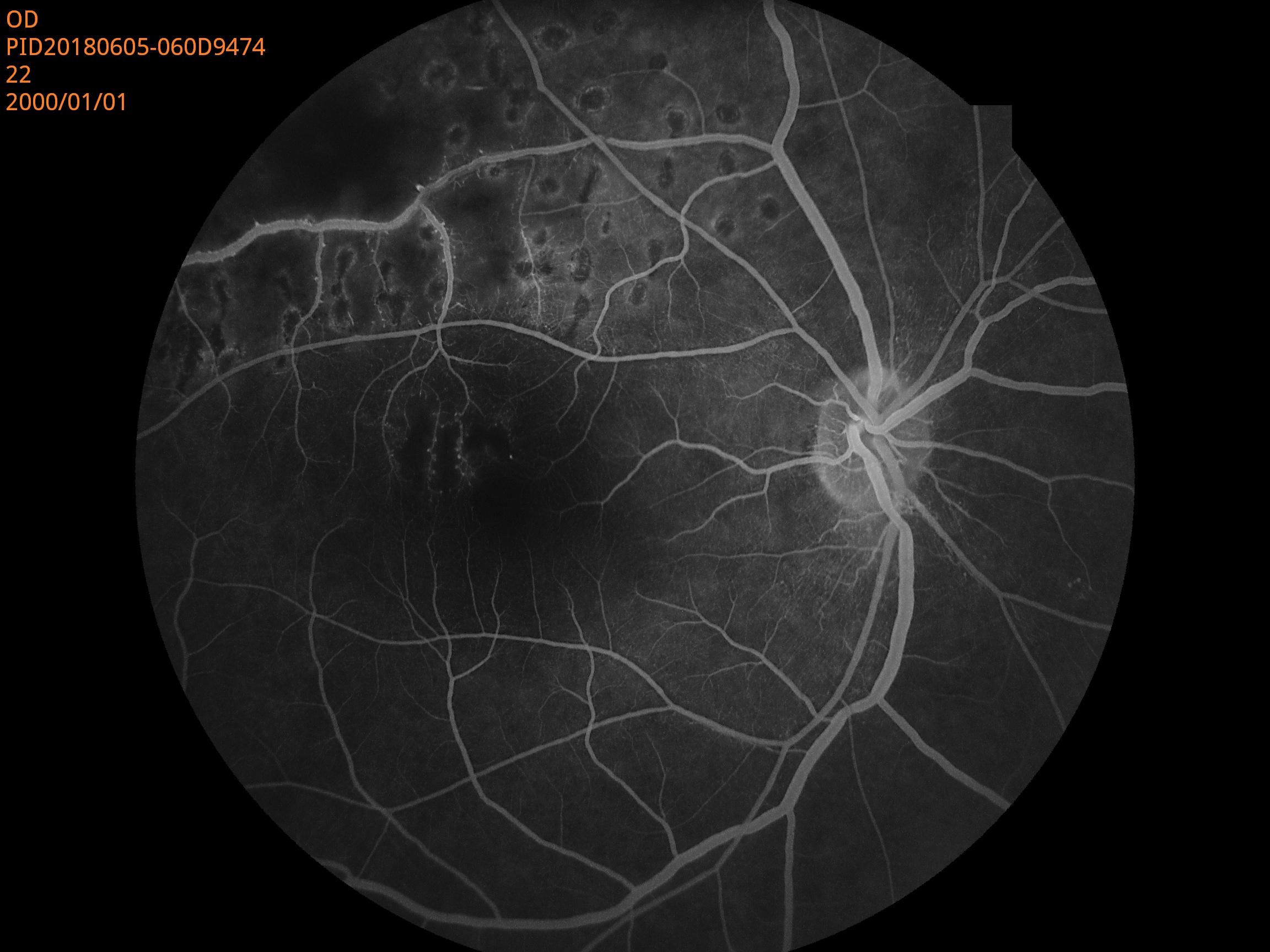 Ophthalmic Auto Digital Non-mydriatic Eye Fundus Camera With FFA