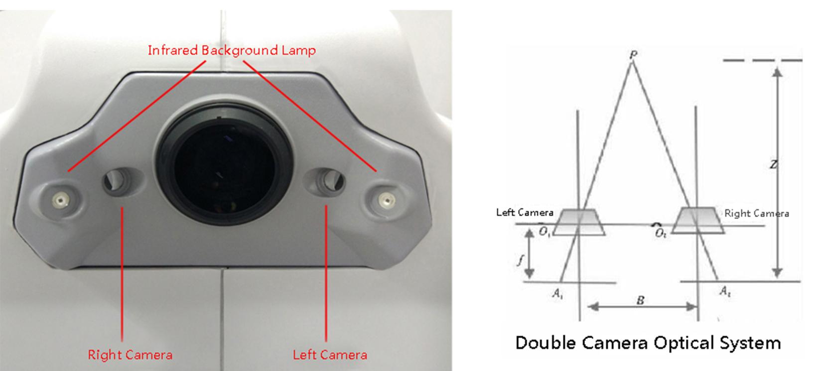 eye fundus camera