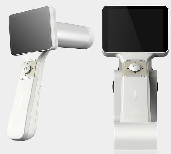 digital fundus camera