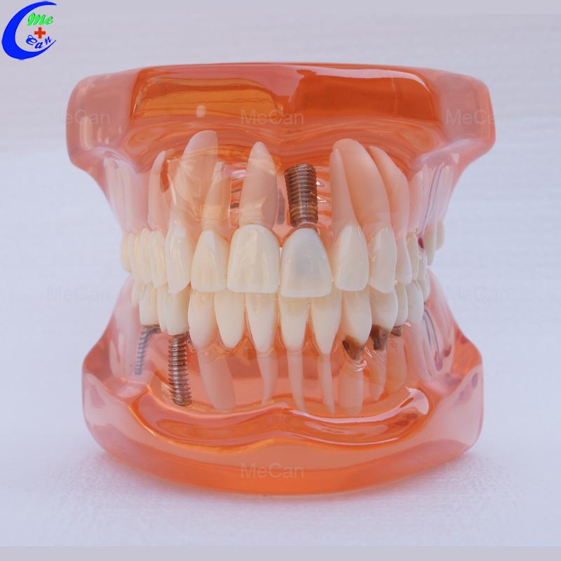 Plastic Dental Model of Teeth, Restoration with Implant