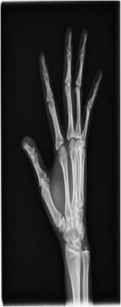 Digital Portable X-ray System