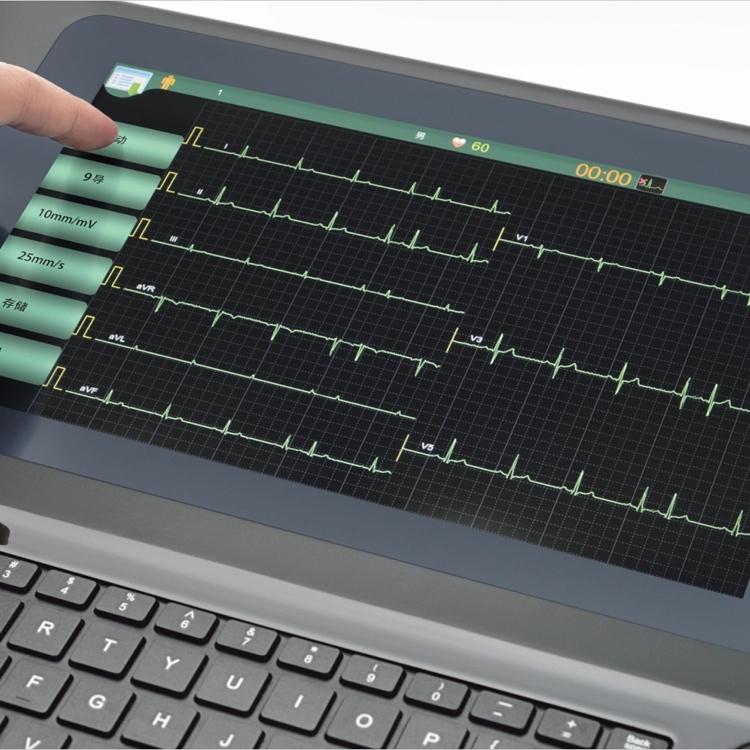 MeCan Brand Portable ECG Machine Manufacture 3