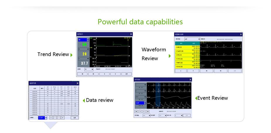 Multi Parameter ICU Patient Monitor System 7