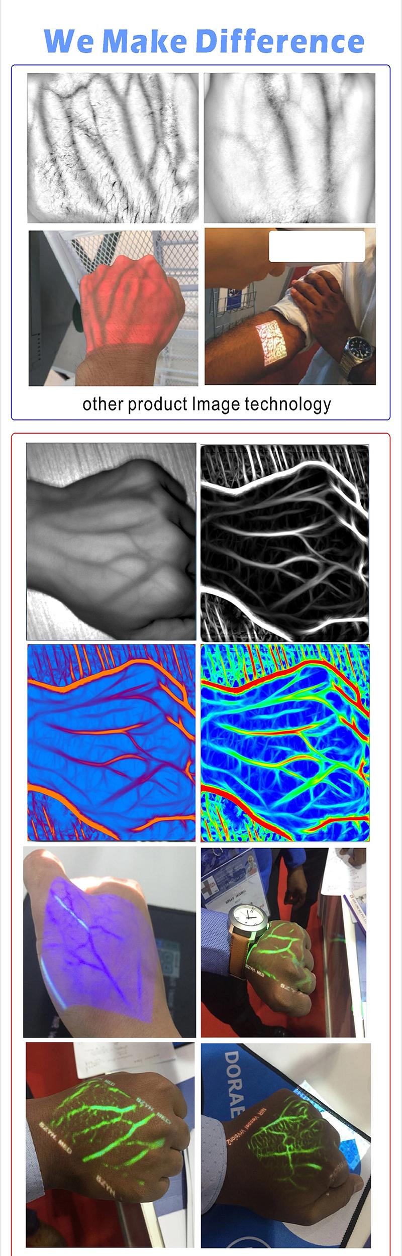 Portable Clinical Infrared Vein Showing Vein Finder 12